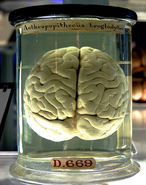 Brain_in_a_jar